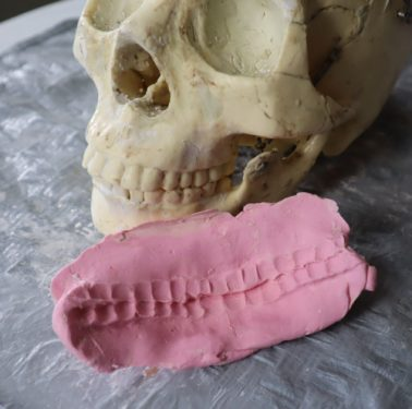 silicone mold of teeth on resin skull